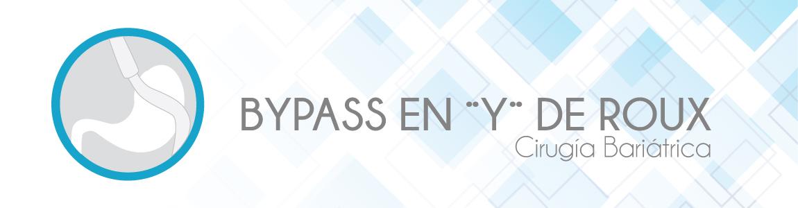 Bypass_En_Y